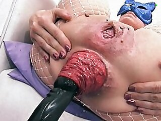 Most Incredible Prolapse Scene! Cervix, Fisting, Max Stretch   anal ass gaping extreme fisting
